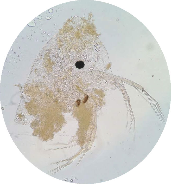 Microscope image of the head of a cladoceran zooplankton