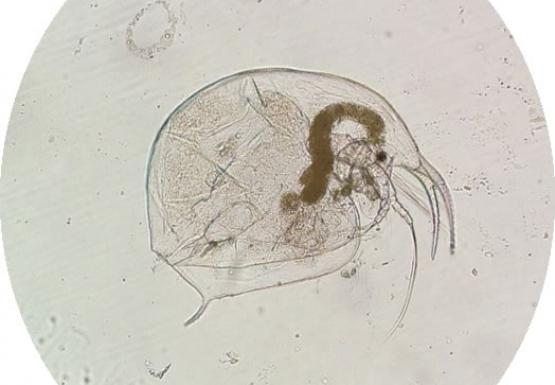 Microscope image of a cladoceran zooplankton