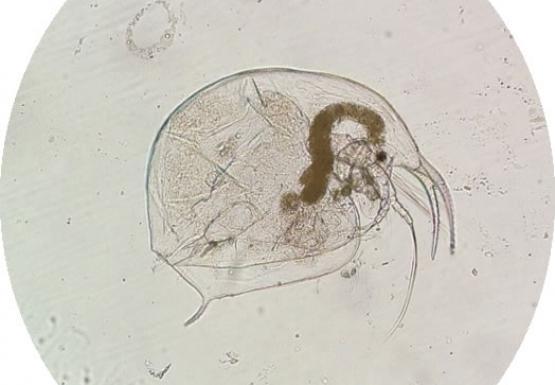 Microscope image of a cladoceran zooplankton